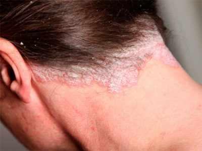 Симптомы псориаза волосистой части головы