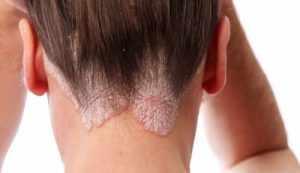 Эффективные способы лечения псориаза на голове в домашних условиях